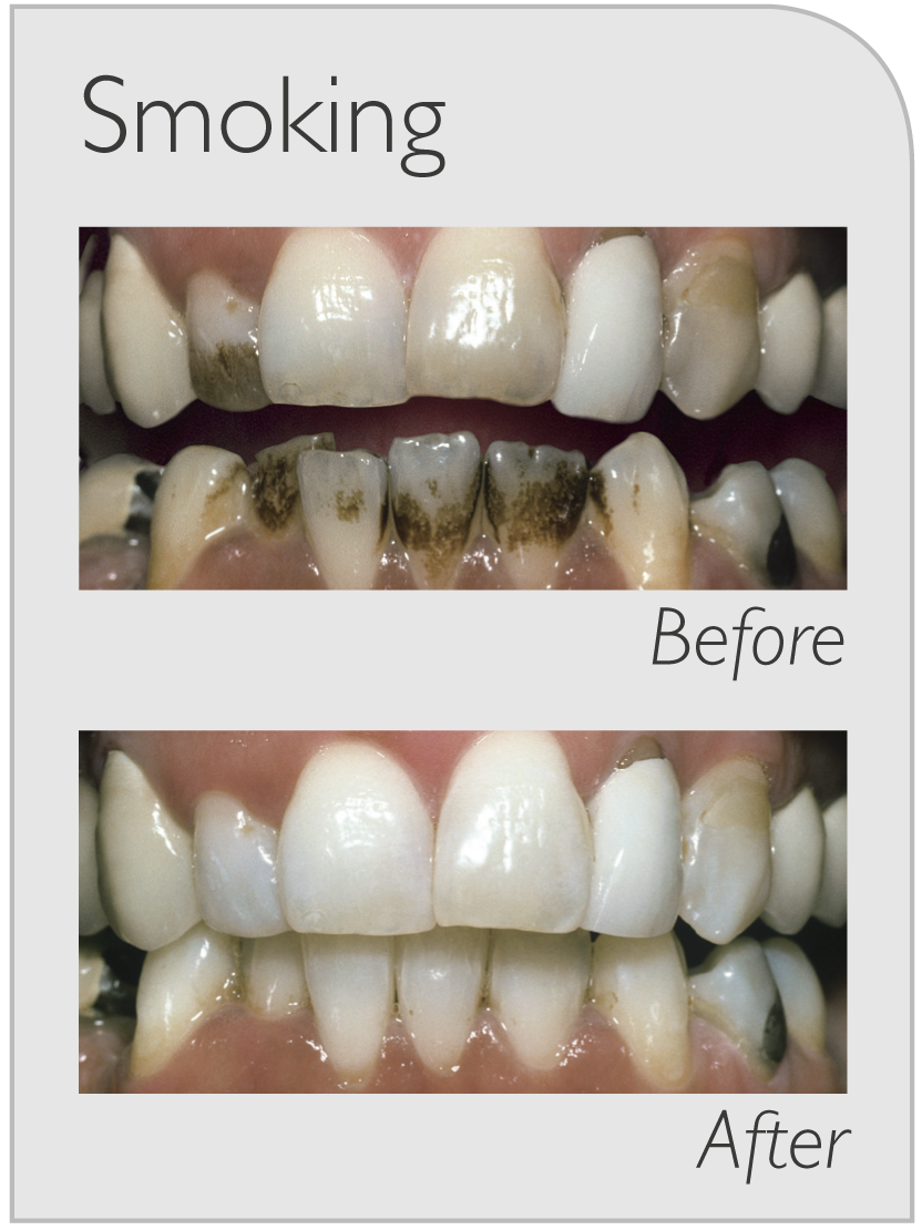 Zoom Whitening Before And After Smoking Top Class Dental Burwood